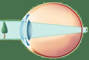 L'oeil hypermétrope
