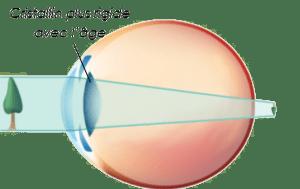 La presbytie et son oeil